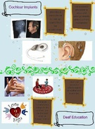 cochlear implant's thumbnail